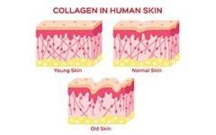 diagram of collagen in skin