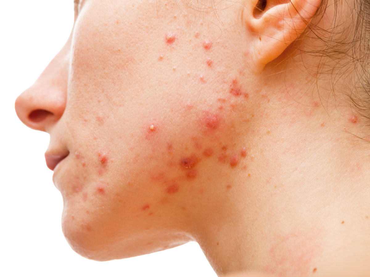 inflammatory acne on jaw line