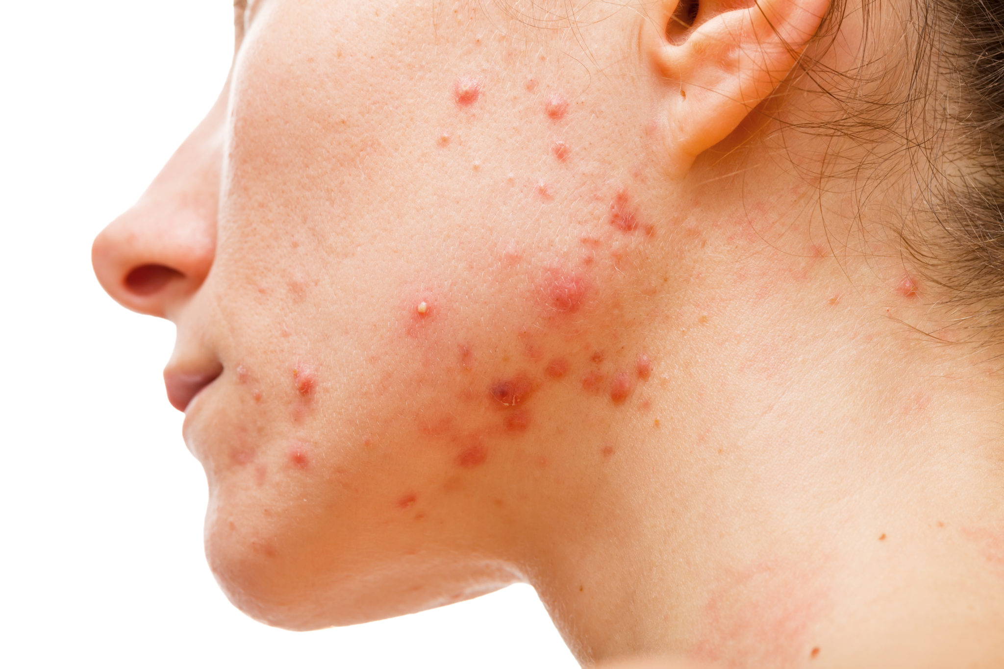 inflammatory acne on jaw line