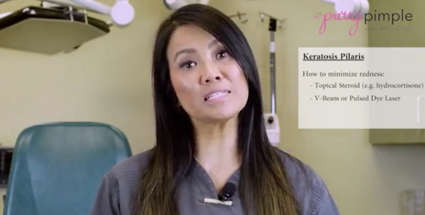 Dr Sandra Lee aka Dr. Pimple Popper discusses Keratosis Pilaris