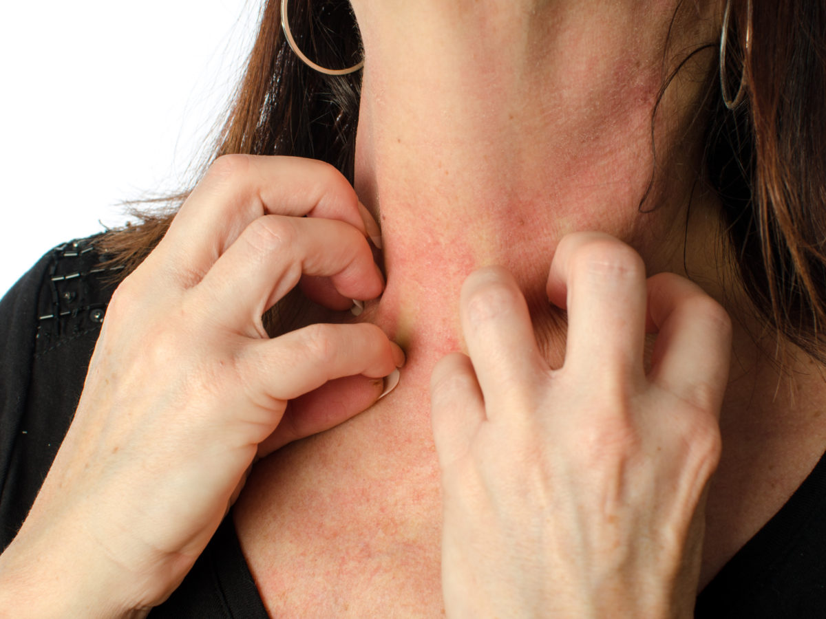 Woman with symptoms of intertrigo scratching her neck