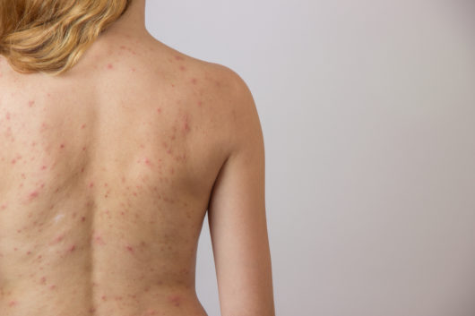 body acne causes
