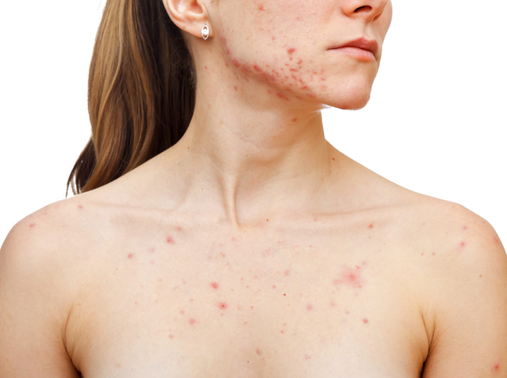 acne on back bacne