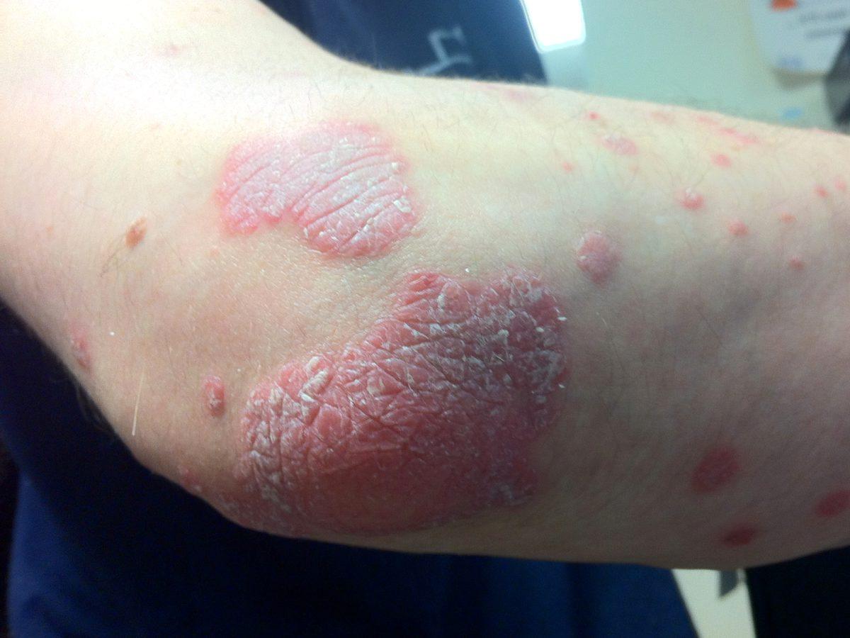 dermatitis and psoriasis