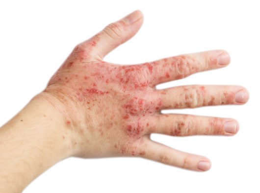 dry itchy skin on hands