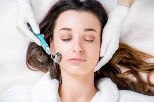 microneedling procedure on woman