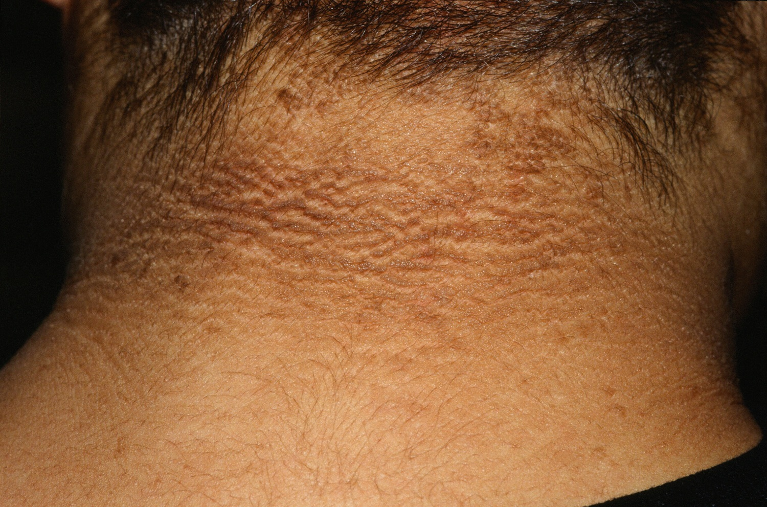 It Could Be Acanthosis Nigricans