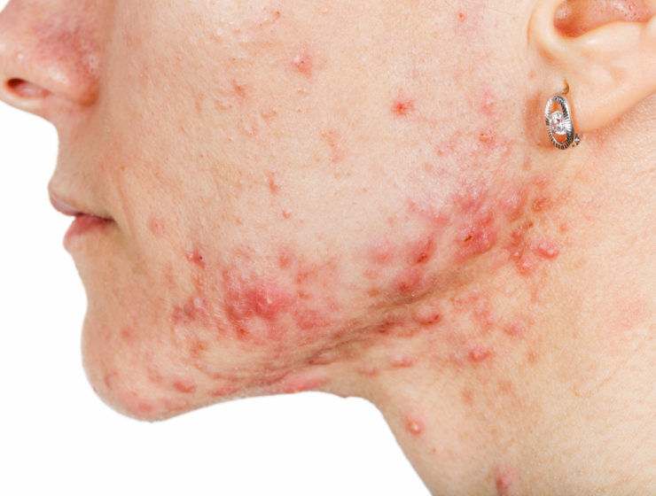 woman with acne on chin and cheeks
