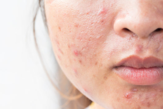 How To Control Pimples On Face Naturally