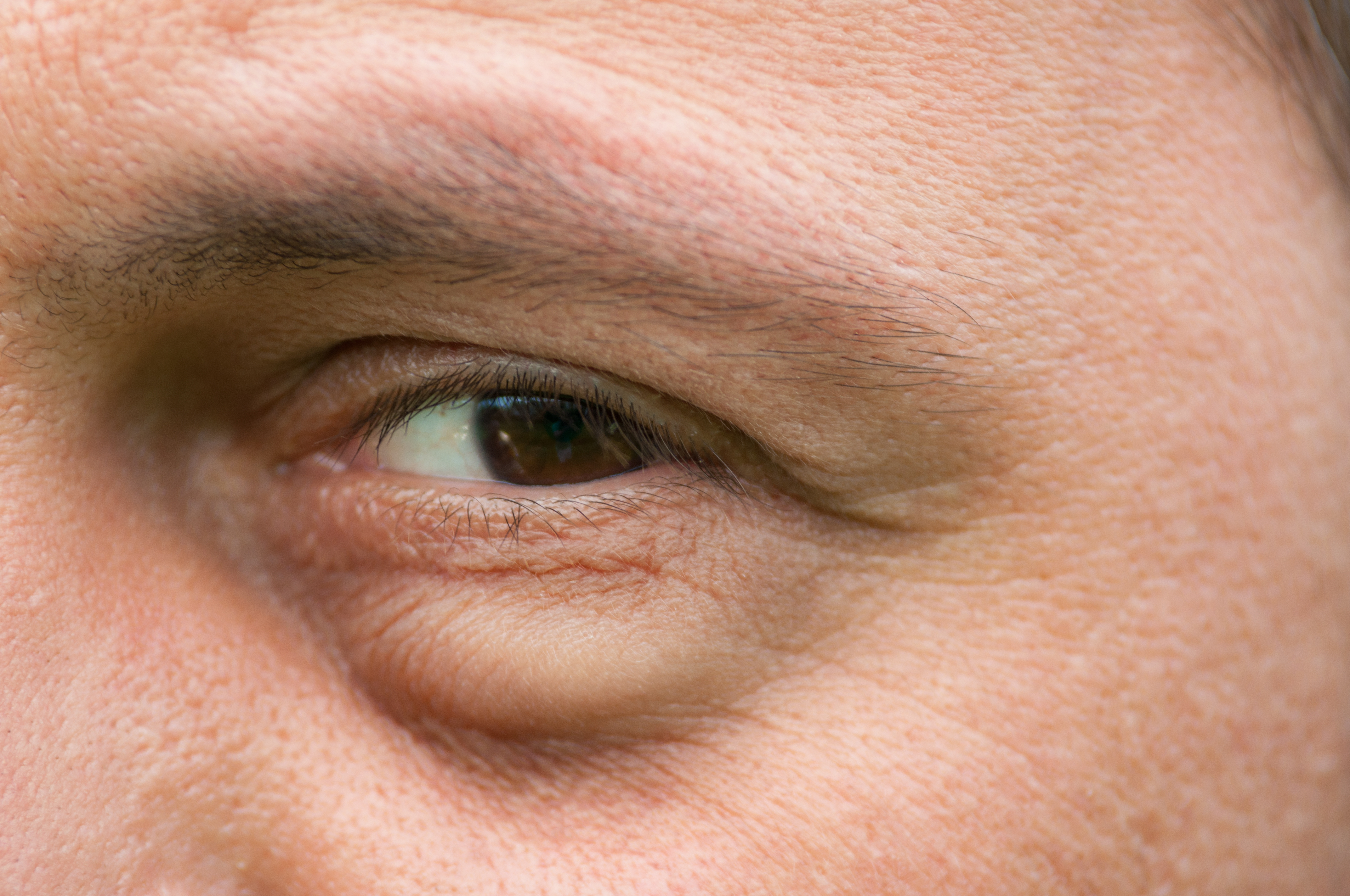how to get rid of pimple under eye
