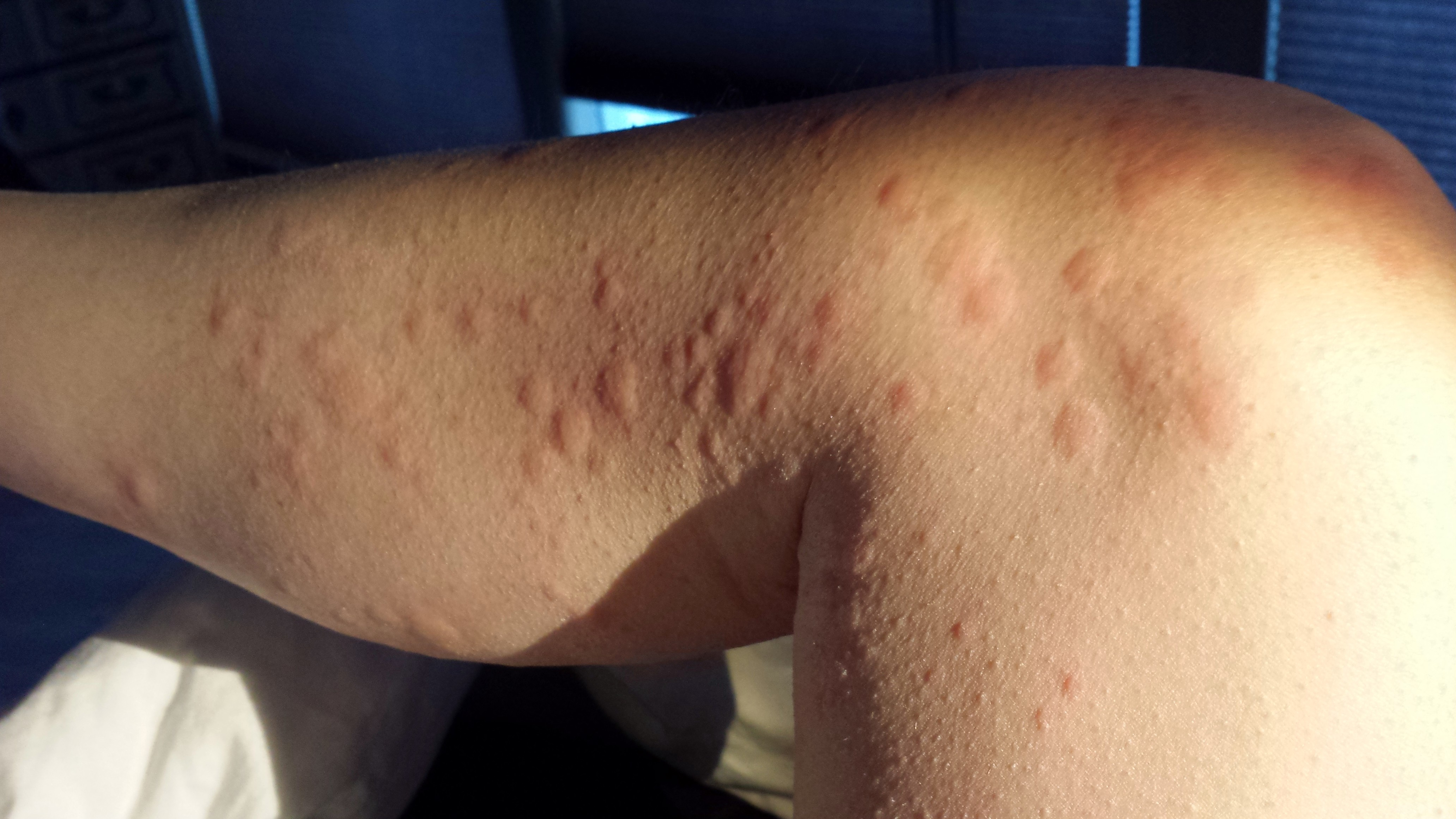 Cold urticaria: symptoms and treatment with medicines and folk remedies 19