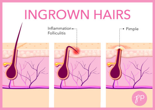 how to prevent ingrown hairs the pretty pimple