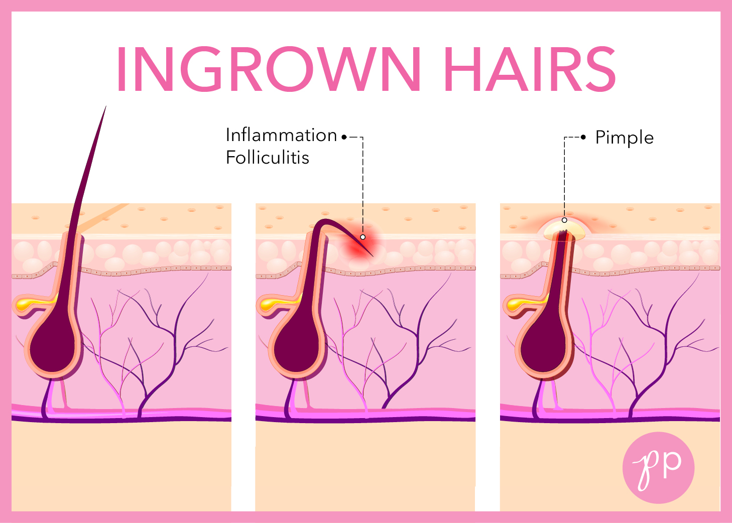 How Do Ingrown Hairs Form Timiznceptzmusic