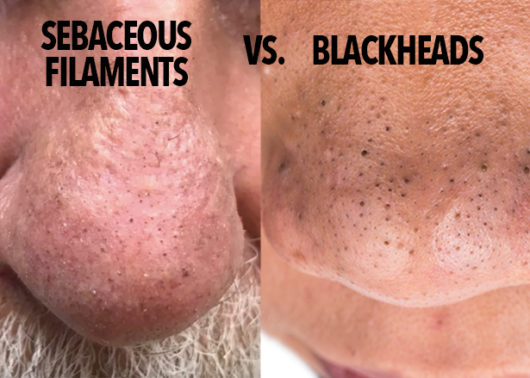 List of Synonyms and Antonyms of the Word: sebaceous filaments