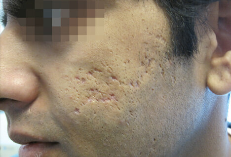 The 5 Kinds Of Acne Scars Amp How To Treat Each Type The
