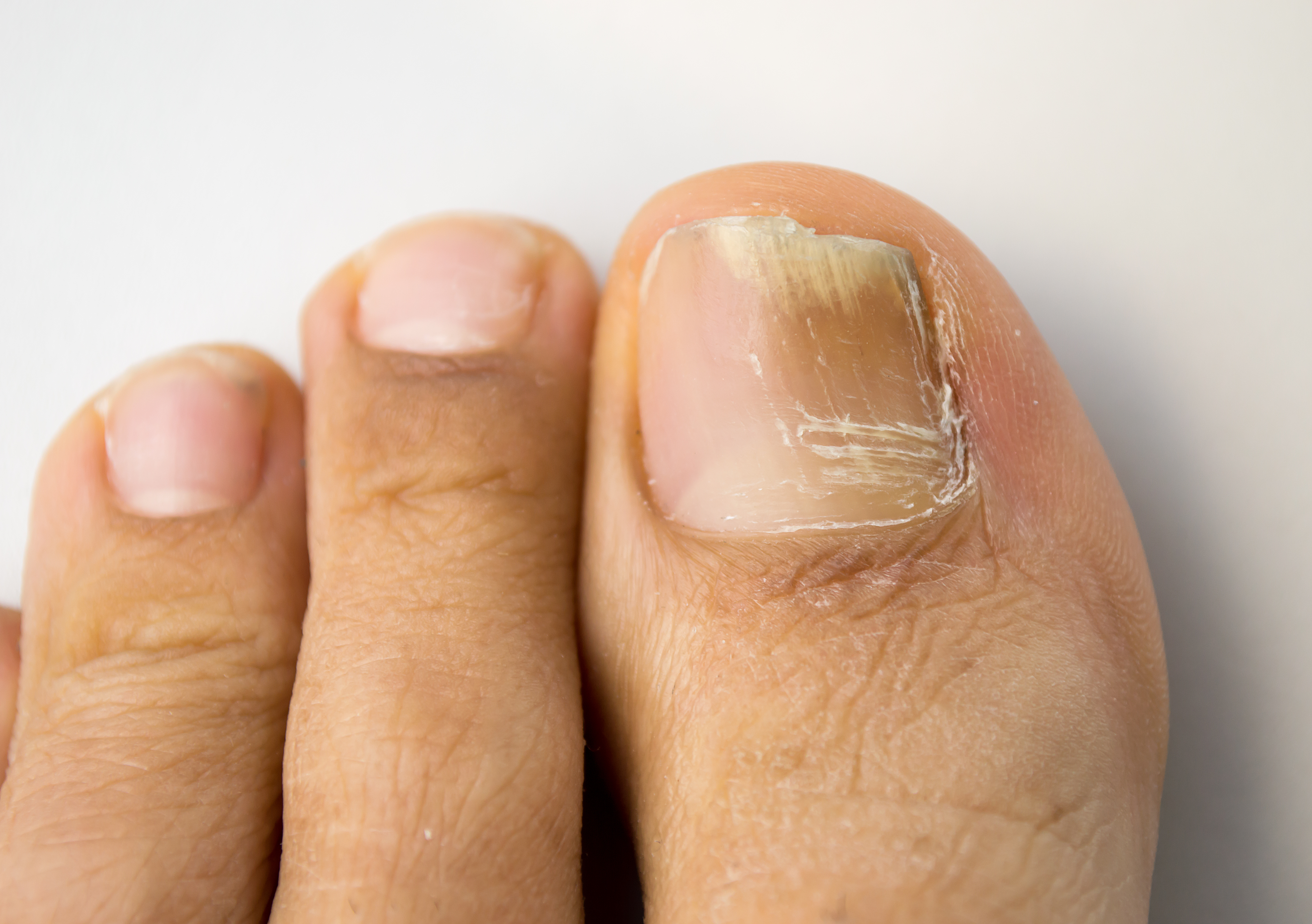 Why Do My Nails Turn Yellow? - The Pretty Pimple