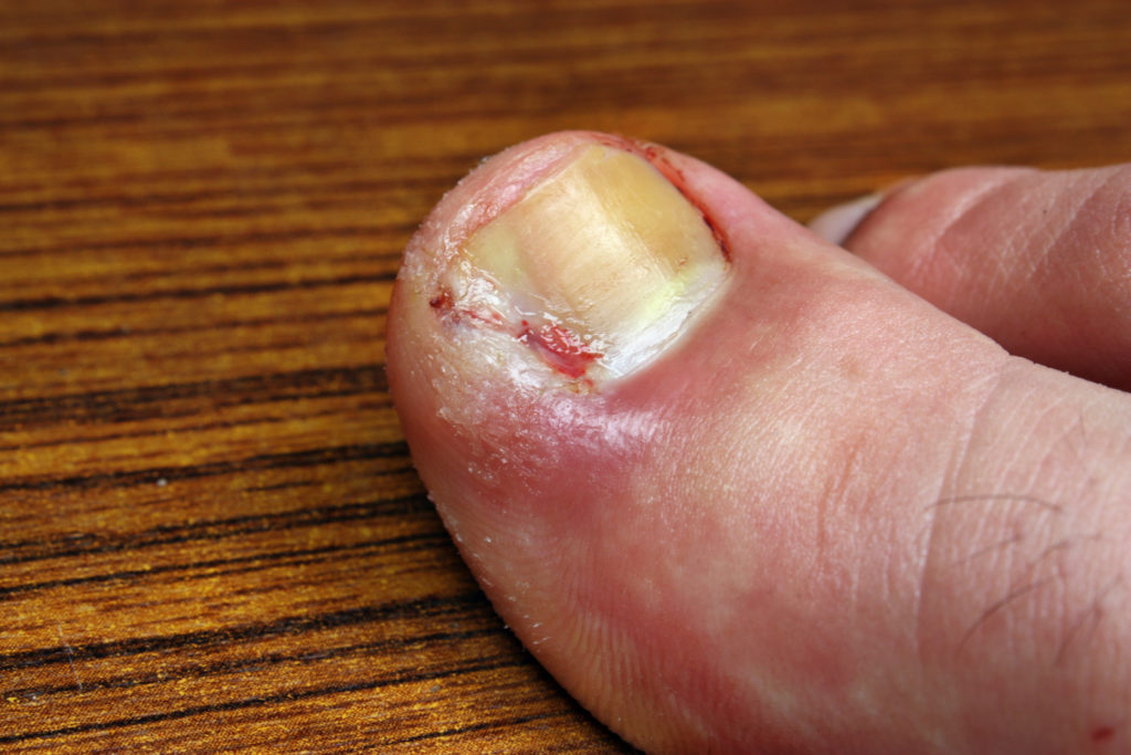 Here\'s Why You Keep Getting Ingrown Nails - The Pretty Pimple