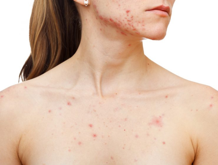 acne on chin and chest